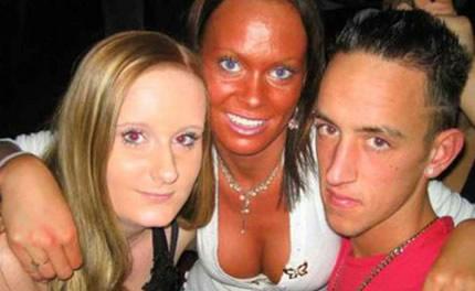 El sol es perjudicial para la piel